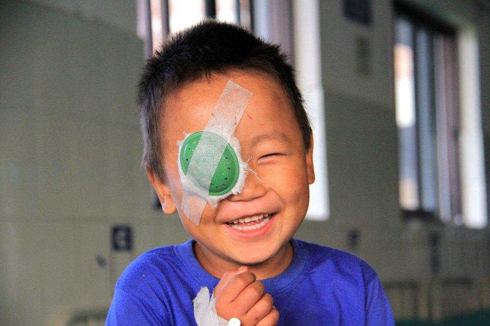 bambino sorridente dopo operazione cataratta