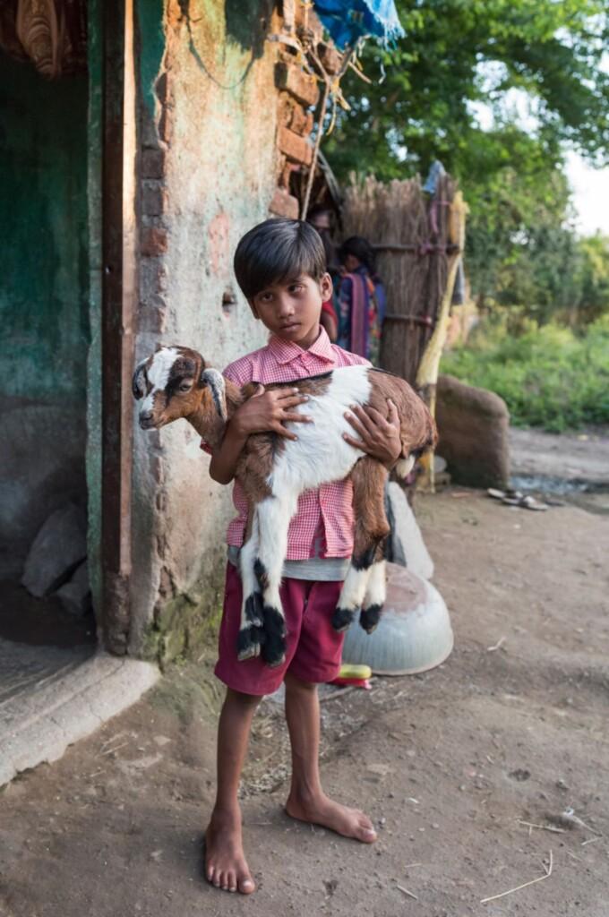 bambino con cataratta in india